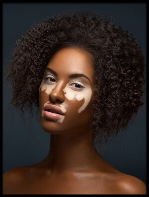 Buy this art print titled Vitiligo by the artist Alex Malikov